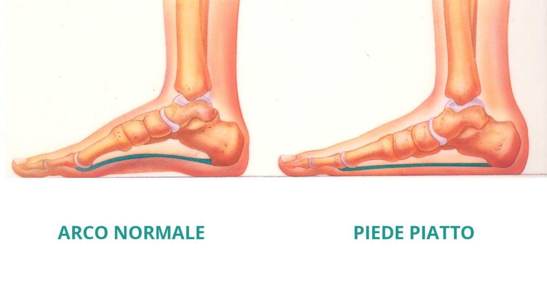 piede_piatto