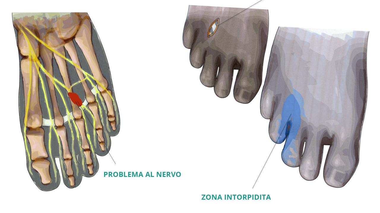 neuroma-di-morton